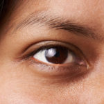 Chalazion Treatment Westfield, NJ